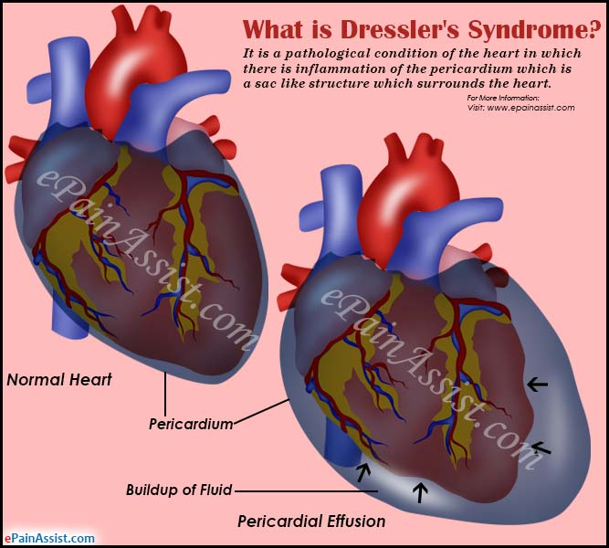Dresslers Syndrome on heart in chest