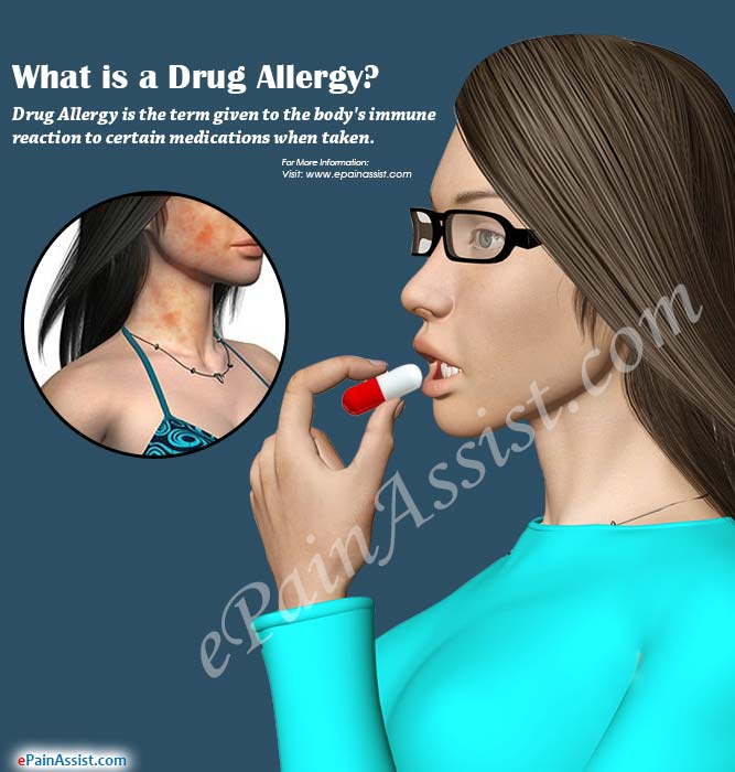 What is a Drug Allergy?