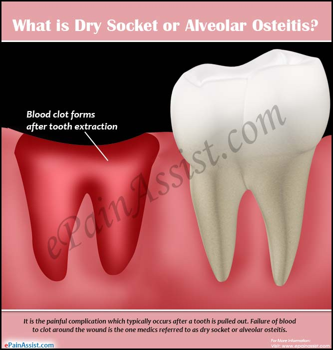 What Is Dry Socket Or Alveolar Osteitis & How Is It Treated?