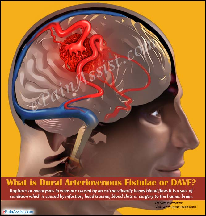 What is Dural Arteriovenous Fistulae or DAVF?