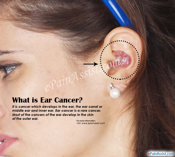 What is Ear Cancer?