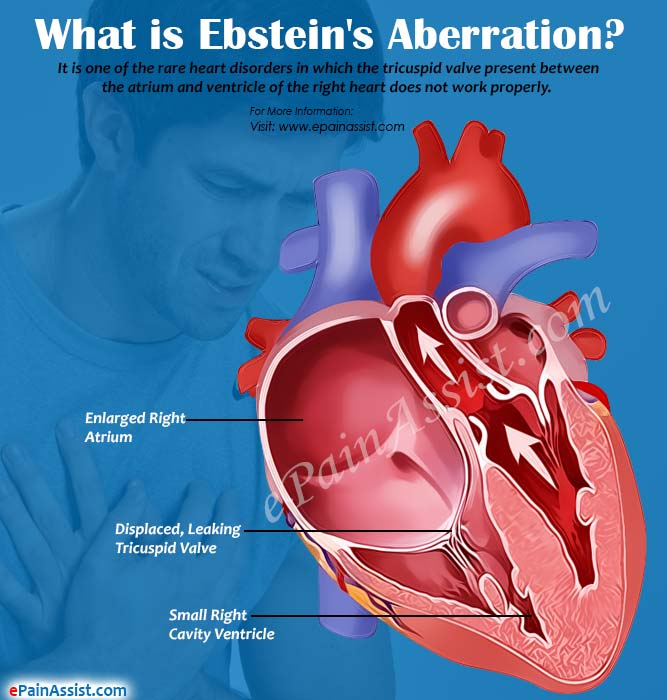 Causes of Ebstein's Aberration or Anomaly