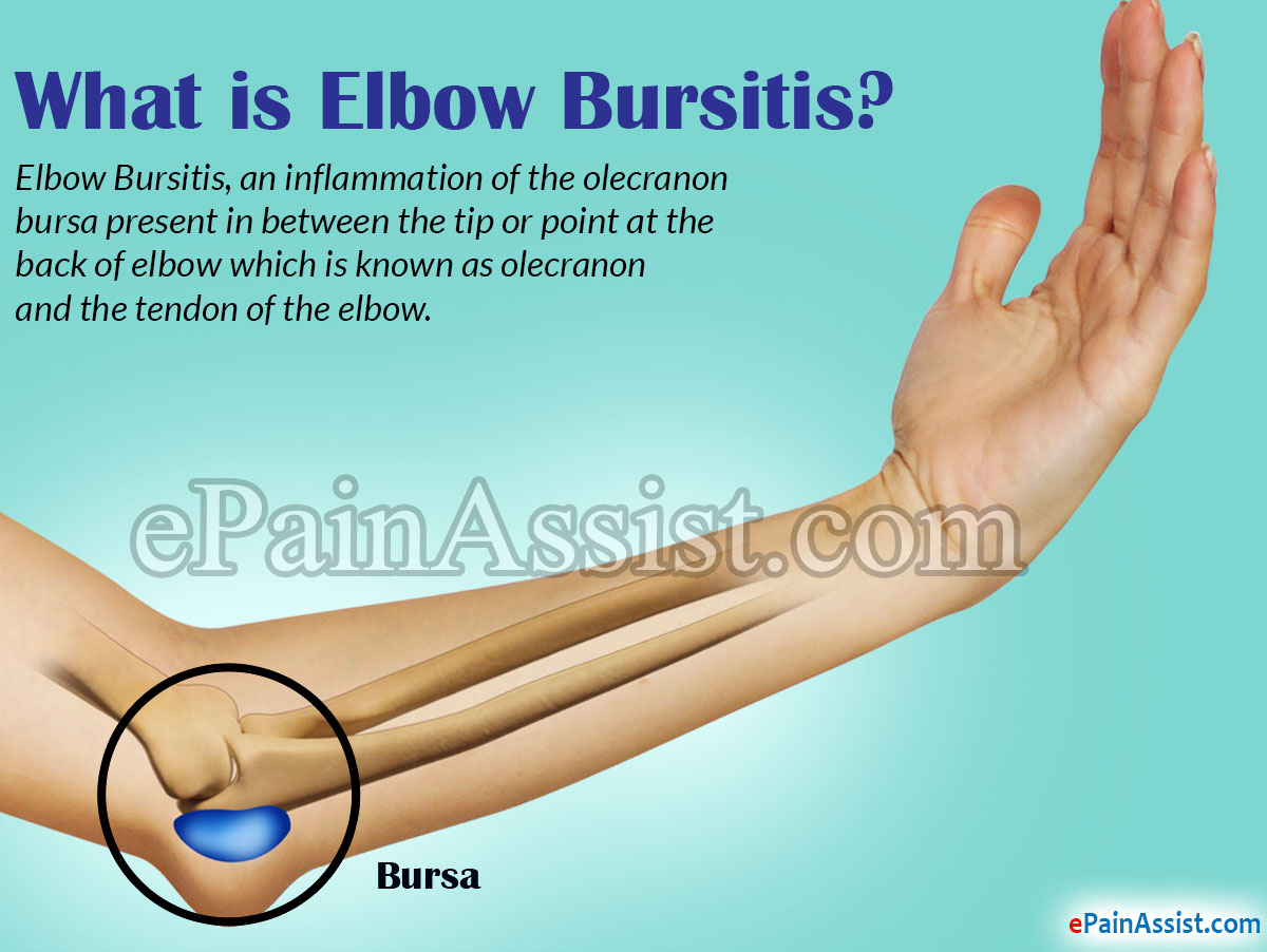 Elbow Bursitis Causes Symptoms Treatment Exercise Recovery Period