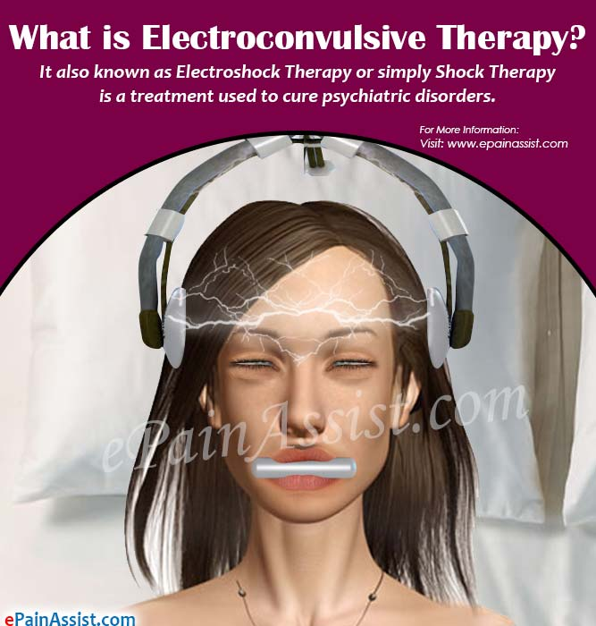 What is Electroconvulsive Therapy?