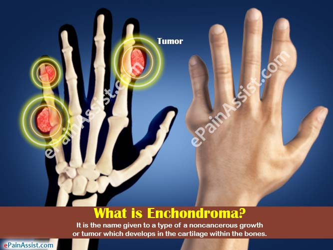 What is Enchondroma?