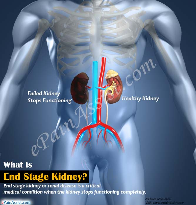What is End Stage Kidney or Renal Disease?