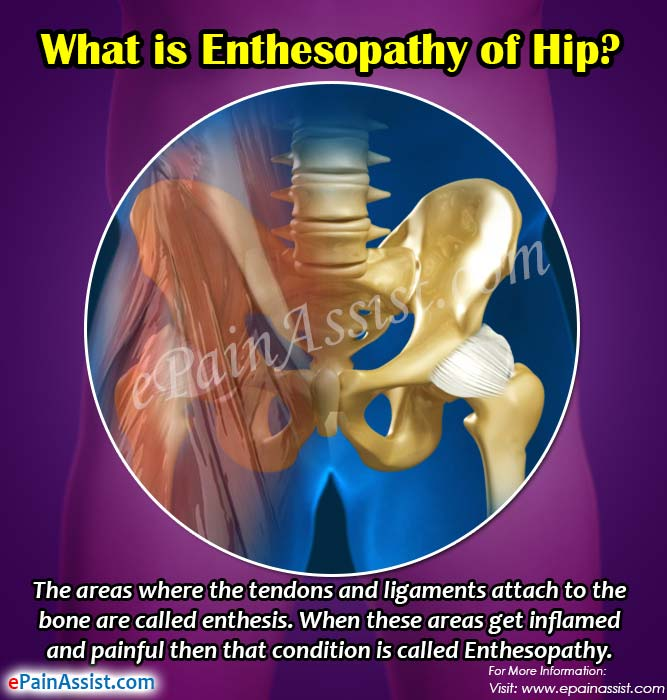 What is Enthesopathy of Hip?
