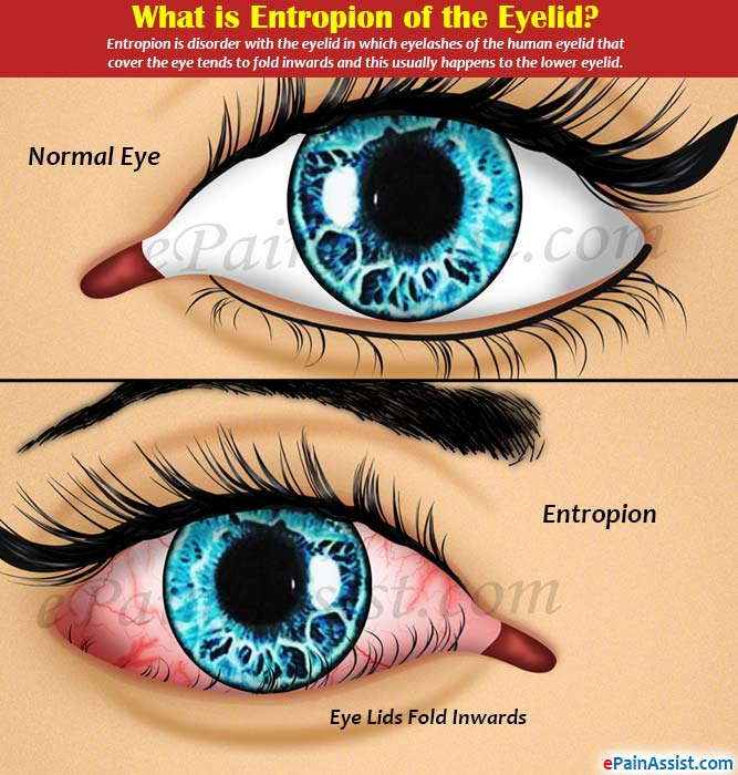 What is Entropion of the Eyelid or Inverted Lower Eyelid?