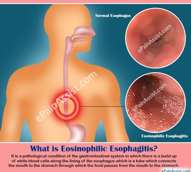 What is Eosinophilic Esophagitis?