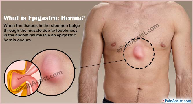 What is Epigastric Hernia?