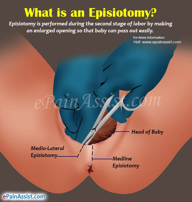 What is an Episiotomy?