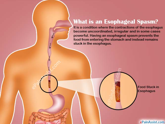 What is an Esophageal Spasm?