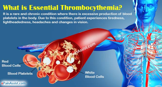 What is Essential Thrombocythemia?