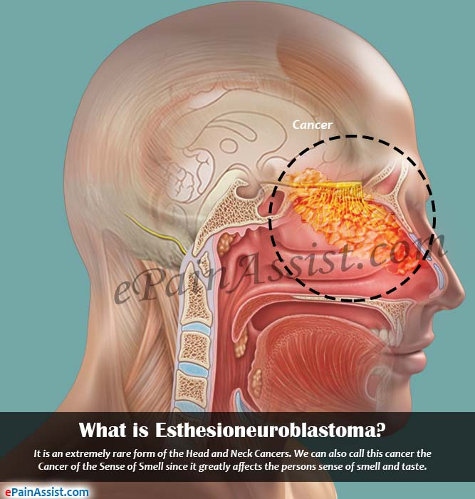 What is Esthesioneuroblastoma or Olfactory Neuroblastoma?