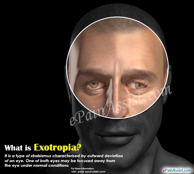 What is Exotropia?