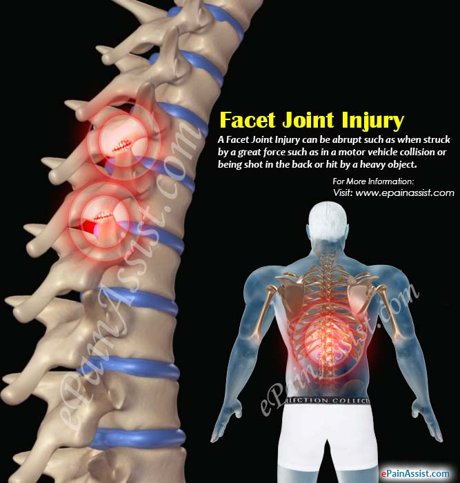 What is Facet Joint Injury