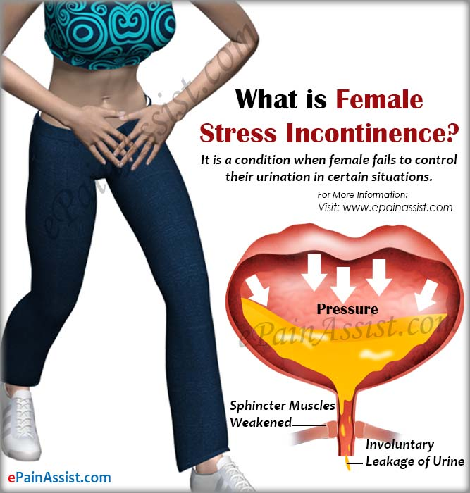 What is Female Stress Incontinence?
