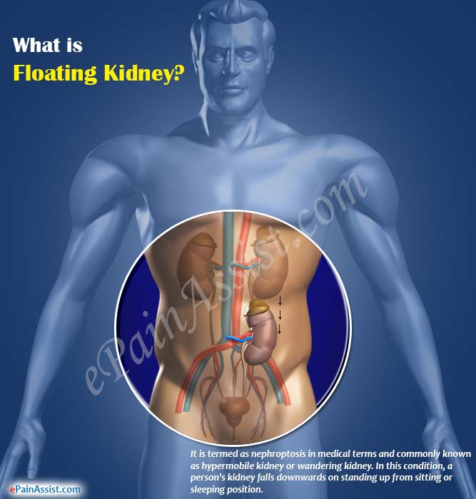 What is Floating Kidney?