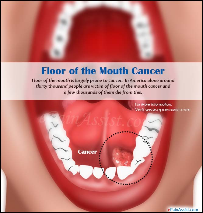 floor of the mouth cancer causes symptoms treatment