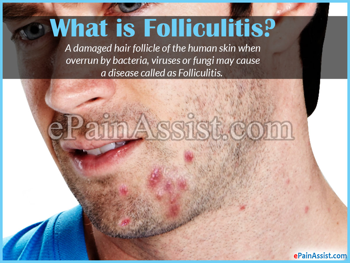 what cause folliculitis
