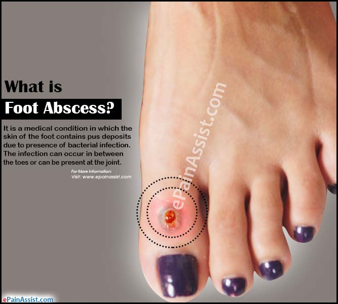 What is Foot Abscess & How is it Treated?