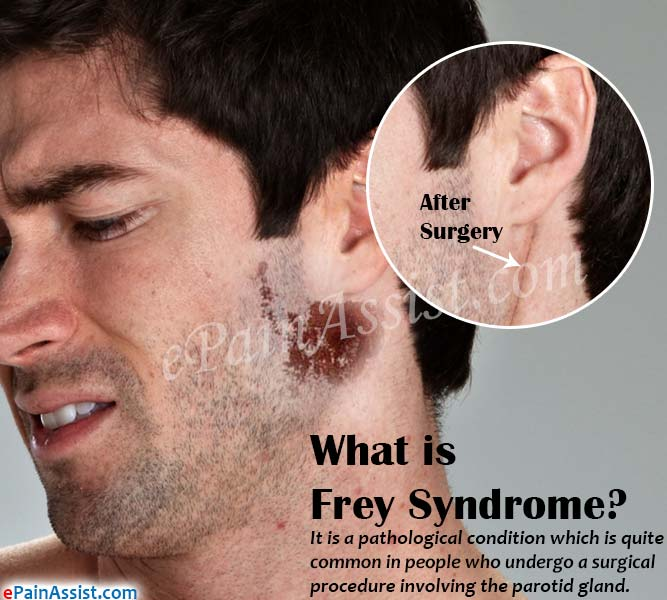 What is Frey Syndrome?