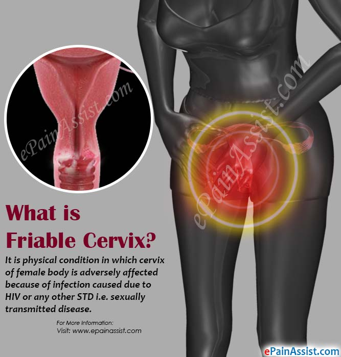 What is Friable Cervix?