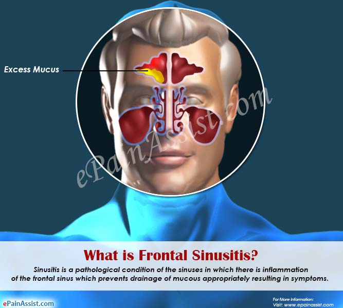 High-quality manner To deal with Sinusitis