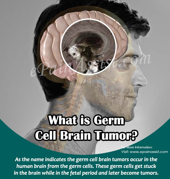 What is Germ Cell Brain Tumor?