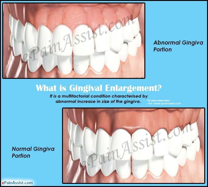 What is Gingival Enlargement?