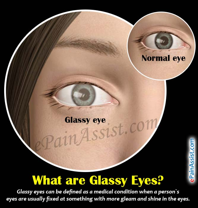 What are Glassy Eyes?