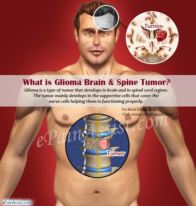 What is Glioma Brain & Spine Tumor?