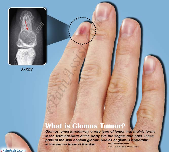What is Glomus Tumor & How is it Treated?