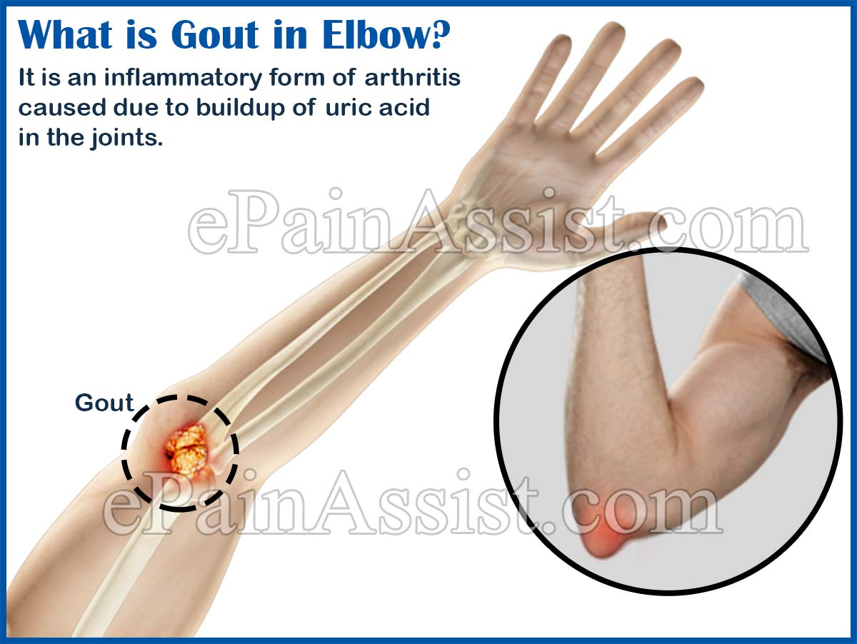 healthy food for uric acid patients gout symptoms and remedy list of food contain uric acid