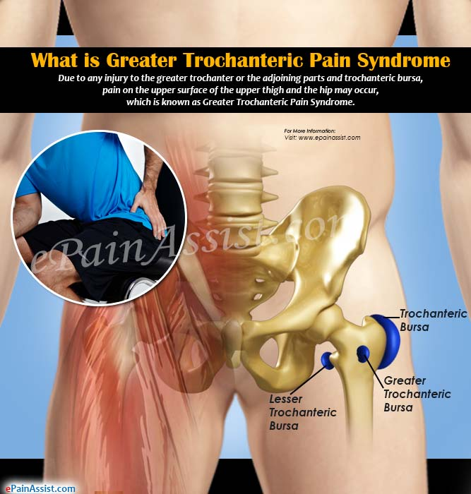 What is Greater Trochanteric Pain Syndrome?