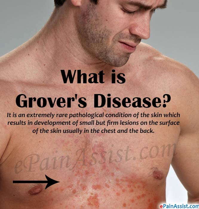 What Is Grover S Disease Causes Symptoms Treatment