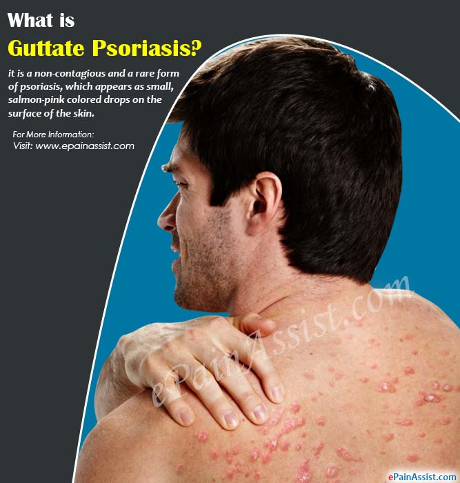 What is Guttate Psoriasis?