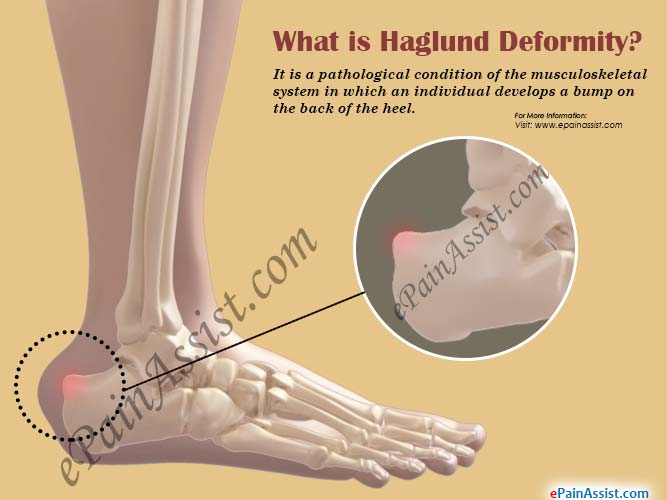What is Haglund Deformity?