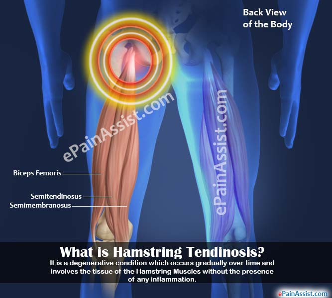 What is Hamstring Tendinosis?
