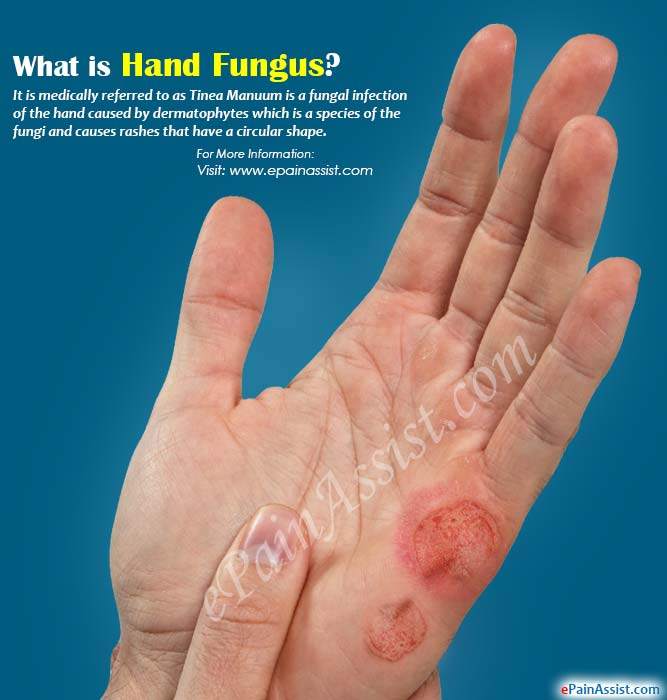 Home Remedy For Tinea Manuum