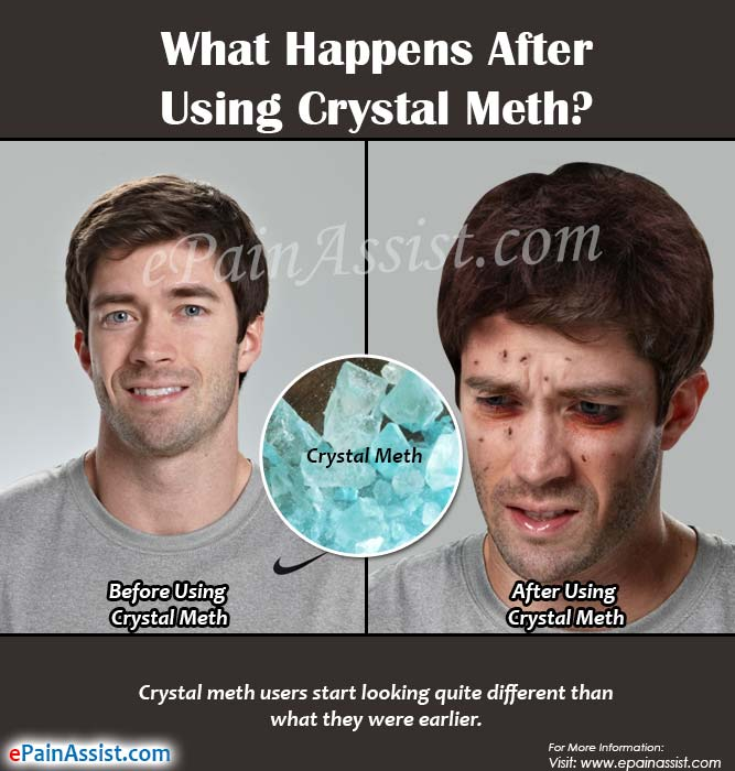 What Happens After Using Crystal Meth?
