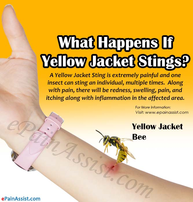what happens if yellow jacket stings 6 home remedies for it