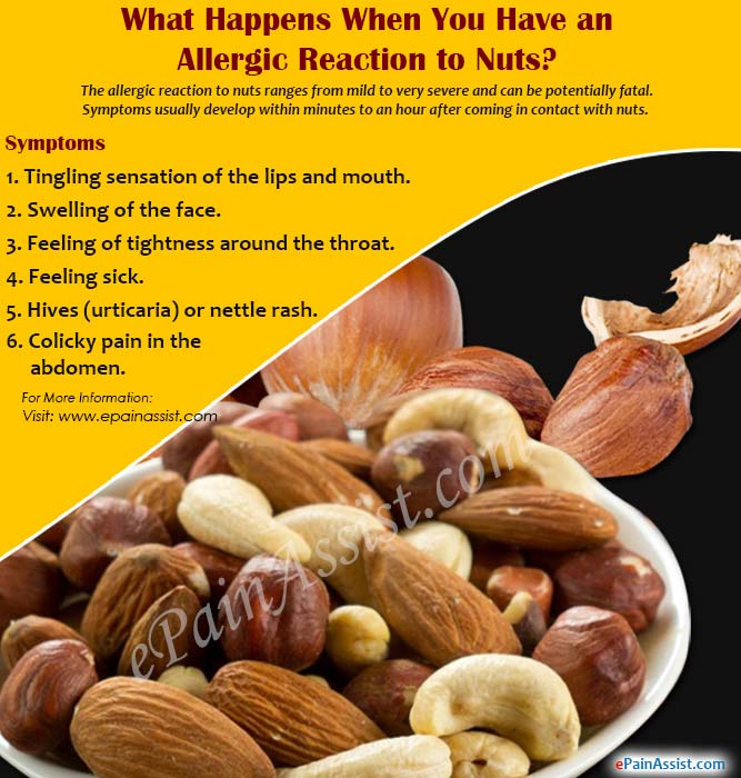 What Happens When You Have an Allergic Reaction to Nuts & How is it Treated?
