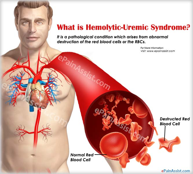 What is Hemolytic-Uremic Syndrome?