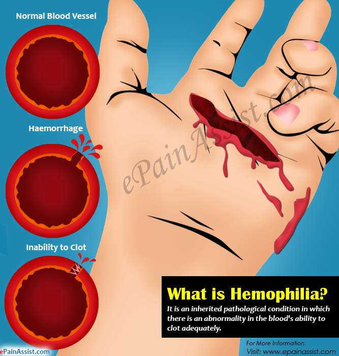 What is Hemophilia?