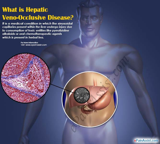 What is Hepatic Veno-Occlusive Disease?