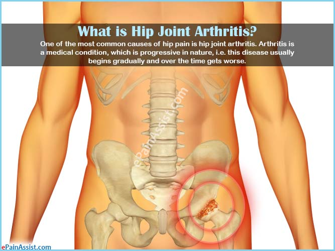 Hip Joint Arthritistypescausessignssymptomstreatmentsurgery