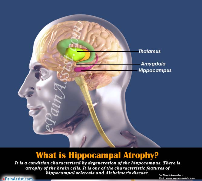 What is Hippocampal Atrophy?