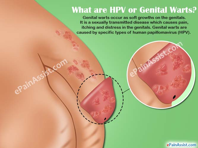 Genital Warts : Symptoms, Causes, and Complications