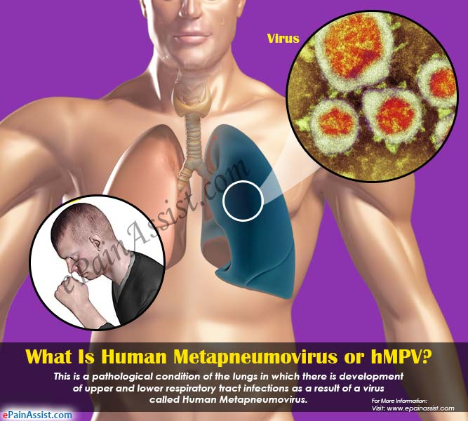 What Is Human Metapneumovirus or hMPV?